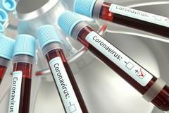 Covid, più di 600 positivi su 3500 test e 26 decessi